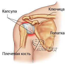 Плечелопаточный сустав тазобедренные суставы ендопротезы