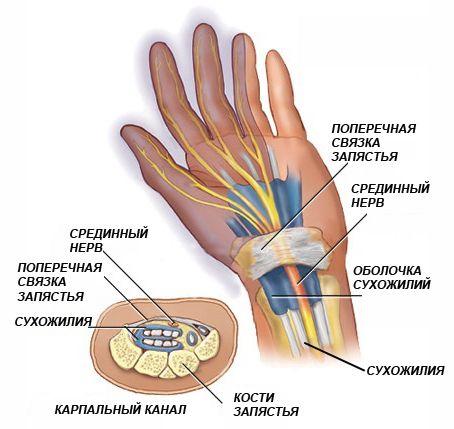 Карпальный синдром (туннельный