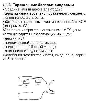 Синдром плечо кисть торакальные боли