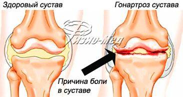 Гонартроз тазобедренного сустава реабилитация коленного сустава после травмы мениска и связки