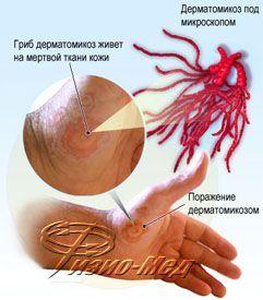 паразиты человека тимоханов скачать