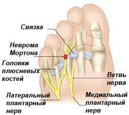 Невринома стопы Мортона лечение ортопедические стельки при невроме